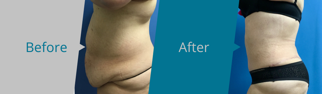 PLUS SIZE TUMMY TUCK