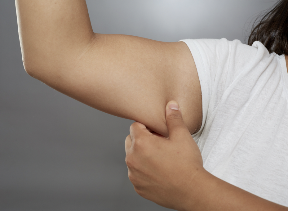 Why An Arm Lift Might Be The Perfect Procedure To Finish Your Health Journey