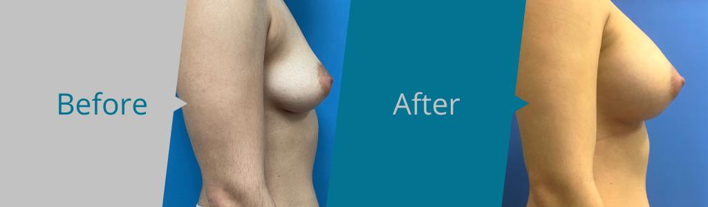 breast augmentation mcallen and san Antonio tx